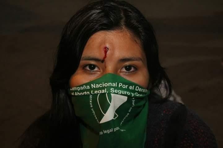 Fotógrafa de La Poderosa herida con bala de goma en la frente